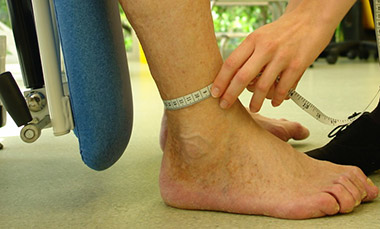 Measurement of ankle circumference